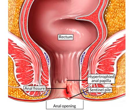 Graphic representation of an anal fisure, where the opening of the anus is being presented and a split is being shown in red on the walls, close to the opening.