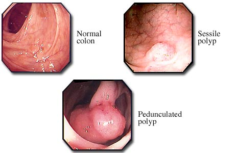 The picture contains three smaller pictures taken by a coloscope and representing a normal colon, a Sessile Polyp and a pedunculated polyp. The sessile polyp has just a small swallow, but the pedunculated polyp is big, covering almost the whole bowel passage.