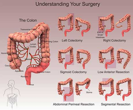 Complex representation meant to understand which part of the bowel is being recessed. It presents a picture of the colon on the left and six smaller pictures of the colon on the right. Is being presented a left and right colectomy, where is highlighted the left and right part of the colon; then a sigmoid and low anterior resection, where is highlighted the lower part of the rectum and the last two are abdominal perineal and segmental resections. The first one shows the very low part of the rectum where the segmental resection highlights the middle top part of the colon.