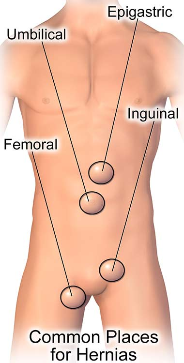 Representation of a human body showing common places for hernias. The lowest is femoral presented on the leg, followed by inguinal, just above the leg, umbilical where the stomach is and epigastric on top of the stomach.