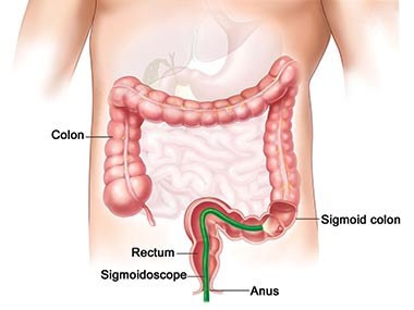 Graphic representation of the human body while a sigmoidoscopy is performed. It is highlited the colon and the green coloured sigmoidoscope inserted through the anus.