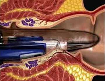 The THD and rectal mucopexy procedure. The tool is being shown inserted into the anus., ready to perform a transanal dearterialization